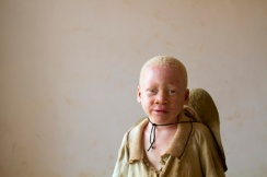 At Kabanga Primary School and Center for People with Albinism, in Kabanga, Tanzania on Saturday, Sept. 1, 2012. (Photo/Jacquelyn Martin)